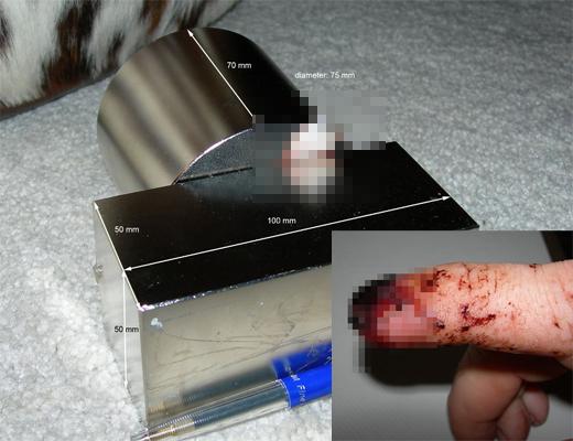 【閲覧注意】世界一強力な磁石に挟まれた指が悲惨なことに・・・ ※グロ画像
