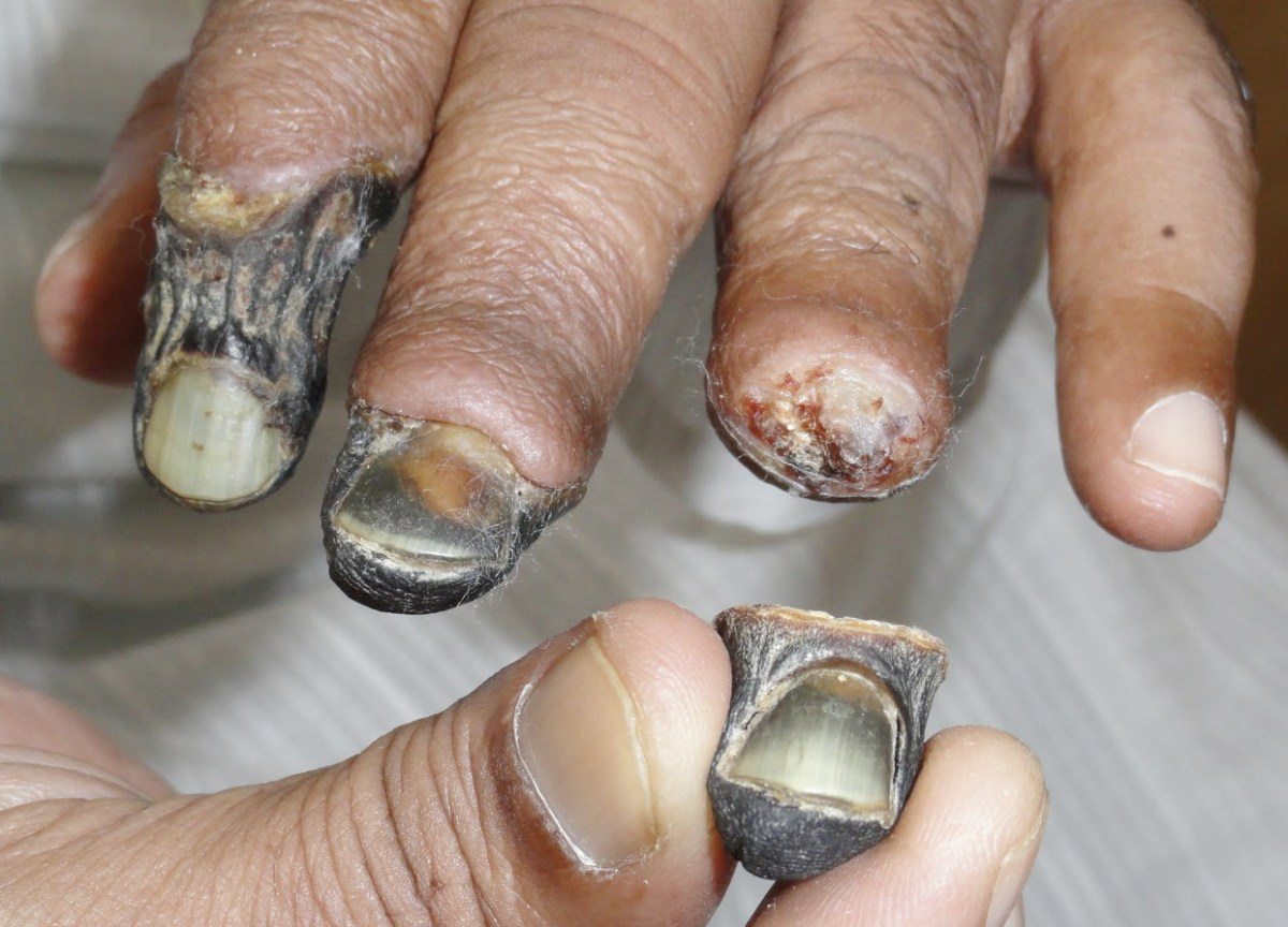 Krokodil, The Drug that Eats You Alive [Graphic Images]
