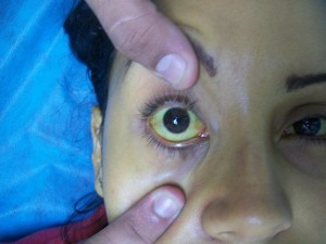 Jaundice (yellow skin and/or eyes) may set in if by stage 2, the conditions worsen