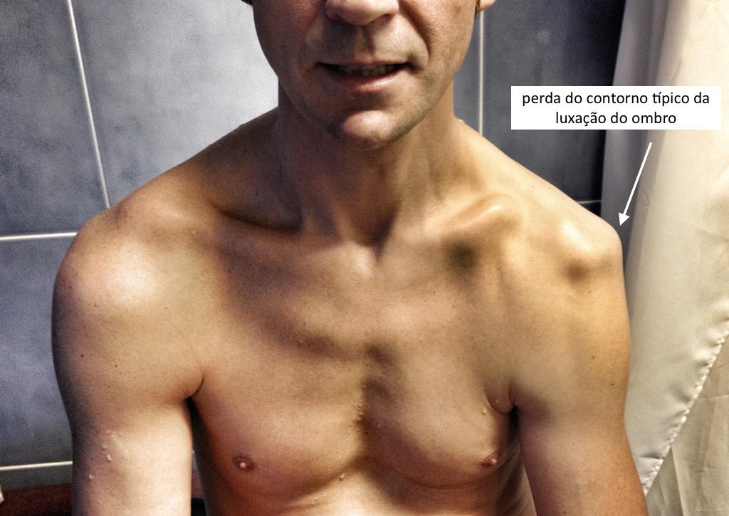 exame físico de uma luxação de ombro