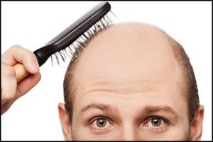 coconut-oil-hair-growth-and-baldness-cure