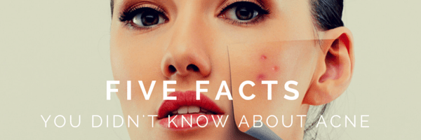 5-facts1