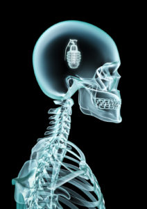X-ray grenade / 3D render of x-ray with grenade inside head
