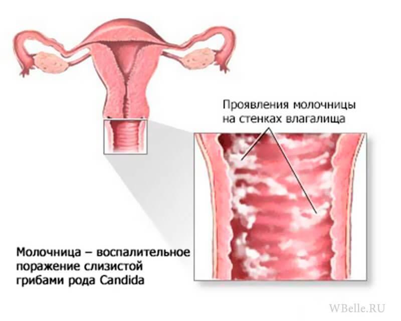 Чем лечить кандидоз во время беременности