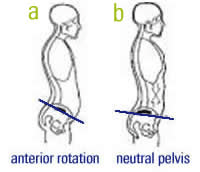 anterior pelvic tilt2 Stand Up Straight...your posture is making you look short and fat