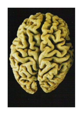 brain alzheimers Is Your Diet Giving You Alzheimers Disease?