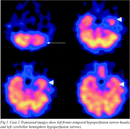 brain hypoperfusion1 Fibromyalgia: A New Test Leads To A Cause And Maybe A Cure