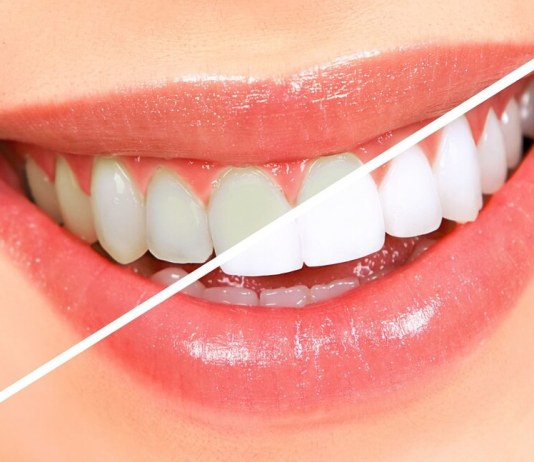 Whiten-Your-Teeth-Using-Only-Two-Ingredients