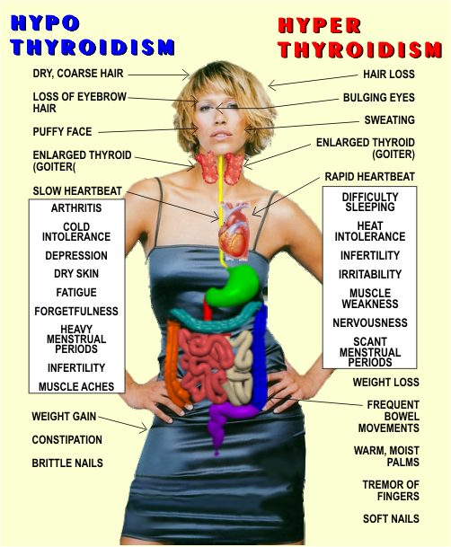 The causes of hypothyroidism