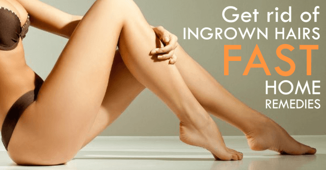 ingrown hair home remedies