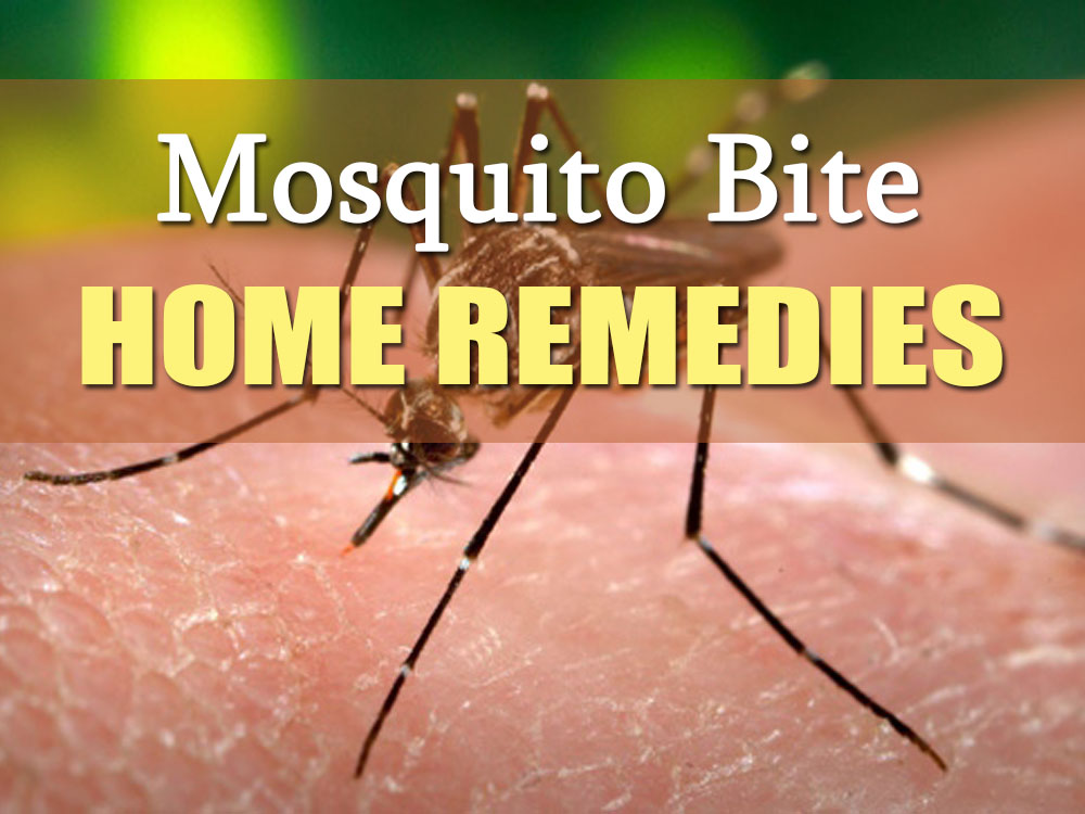How to get rid of mosquito bites 12 home remedies Ways to get rid of mosquitoes in your house