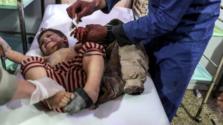 FILE PHOTO: An injured child receives treatment, after getting injured in an alleged bombing by forces loyal to the Syrian government. EPA, MOHAMMED BADRA