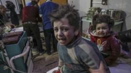 File Photo: Injured children are treated at a hospital in rebel-held Douma, Eastern Ghouta, Syria EPA, MOHAMMED BADRA