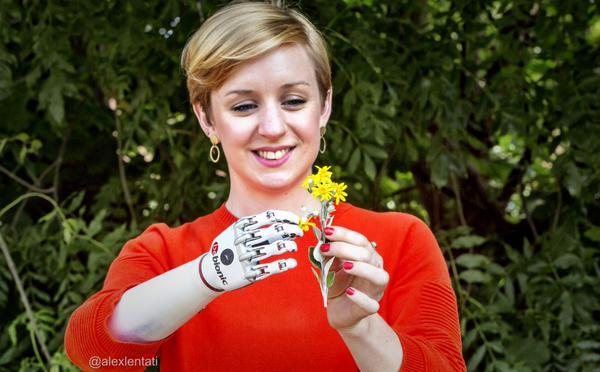 Bionic Prosthetic Hand Suited To The 21st Century