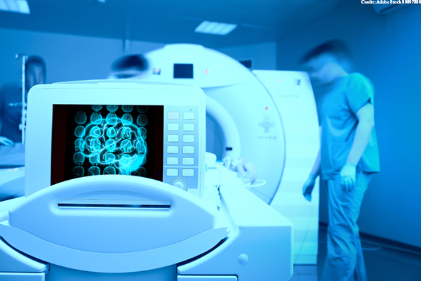 MRI scan on the monitor of patient`s head
