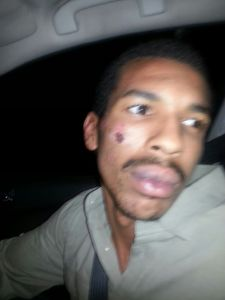 DJ Paris Williams after being beaten by SFPD