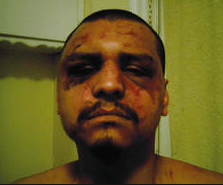 A visitor to LA County Jails Gabriel Carillo was savagely beaten deputies