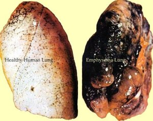 emphysema-lung