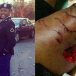 Norfolk State Student Attacked By Police Dogs for Not Cooperating