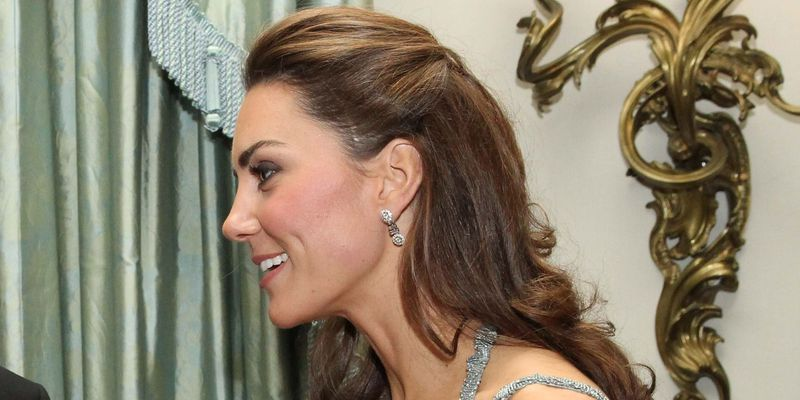 How Did Kate Middleton Get the Scar on Her Face    Kate Middleton     Catherine  Duchess Of Cambridge Attends  In Kind Direct  Charity Event At  Clarence House