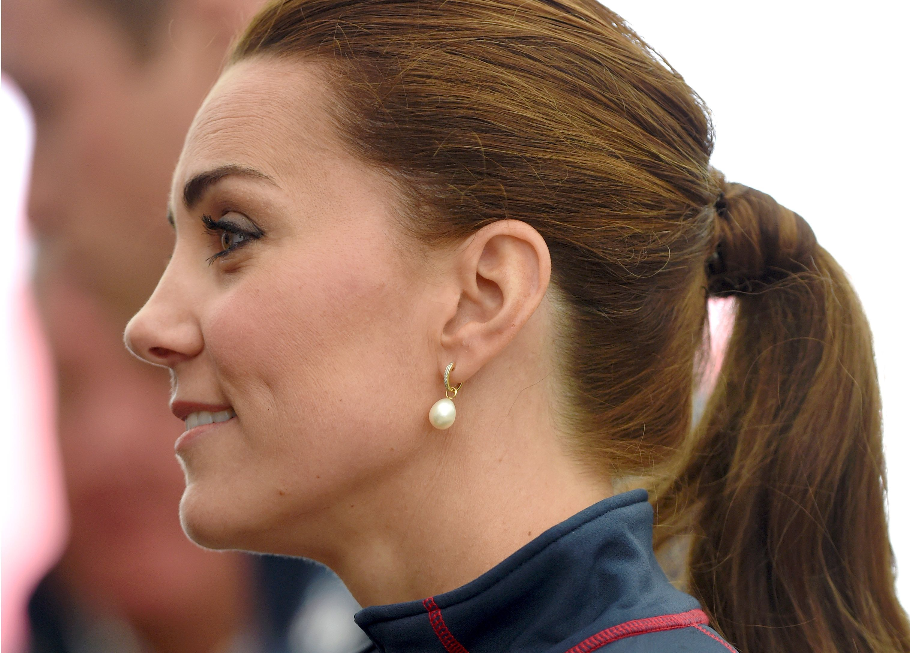 How Did Kate Middleton Get the Scar on Her Face    Kate Middleton     The Duke And Duchess Of Cambridge Attend The America s Cup World Series
