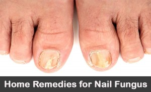 Home Remes For Nail Fungus 20 Diy Treatments Fingers Toes