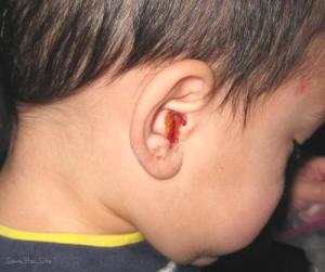 ear infection signs in child