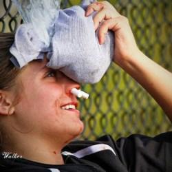 """""""Underappreciated"""" issue of female concussion in spotlight"""