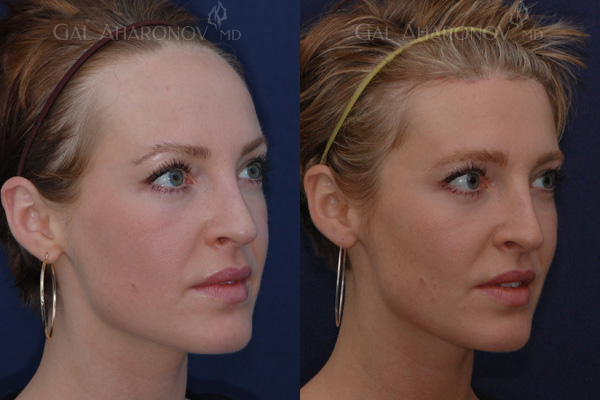 hairline_lowering_surgery_forehead_reduction_surgery_large_forehead_women_04