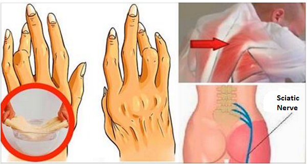 simple-easy-trick-removing-arthritis-back-pain-sciatica-works-better-pills