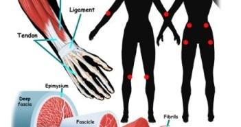 La fibromialgia afecta a los músculos.