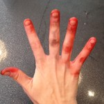 My hands after dyeing