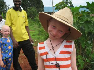 Nonprofit_working_with_albinos