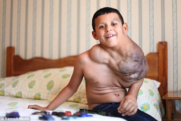 Feeling happier: Jose Serrano, of Ciudad Juarez, Mexico, had been losing time as the life-threatening growth threatened to stop him breathing by putting pressure on his windpipe, with surgeons desperate to operate