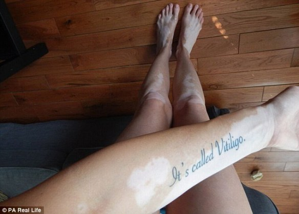 New Yorker Tiffany Posteraro, 24, was an inspiration to Jasmiena after she published these images of her vitiligo having got a tattoo to explain what the condition is called