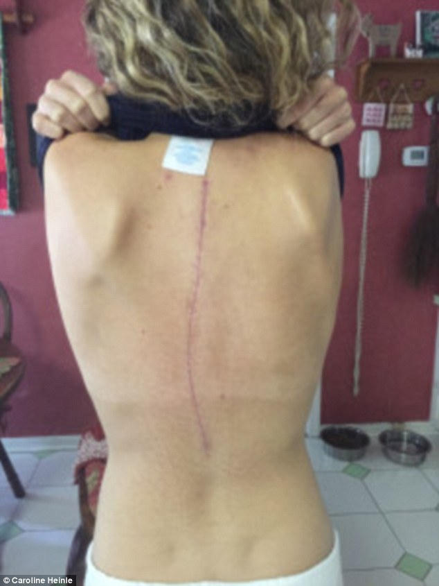 Back to normal: The scar from the operation appears to be healing nicely and Caroline says the surgery changed her life