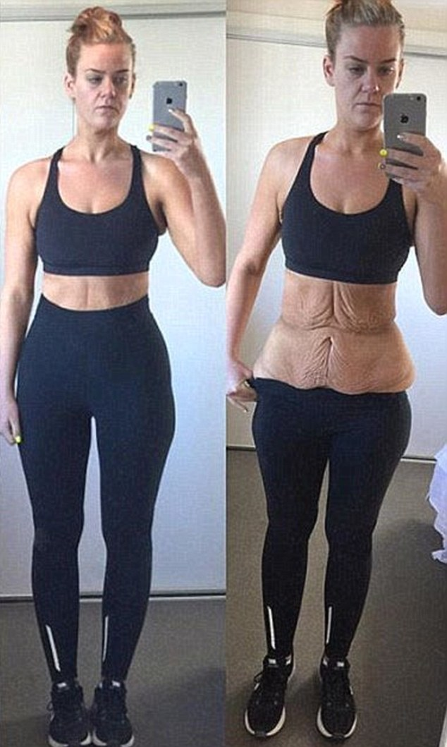Excess skin: On October 29th she had a Gastric Sleeve surgery and in less than 12 months, the determined Auckland-based woman managed to lose an impressive 92 kilograms (202 lbs)
