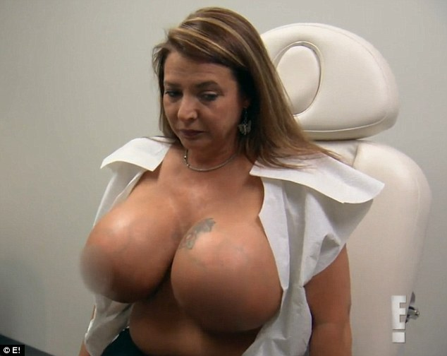 chelsea charms breast enhancement