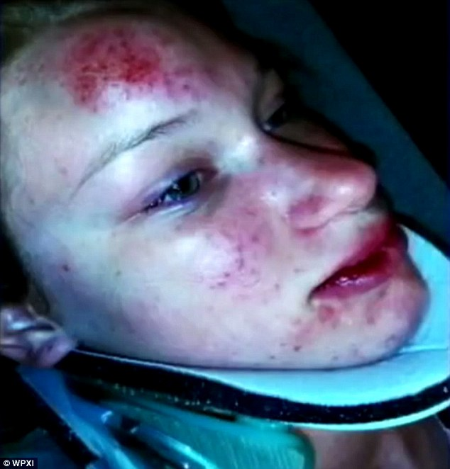 Diesroth, a student at Highlands High School, was also left covered in scrapes and bruises after the incident and remained hospitalized today