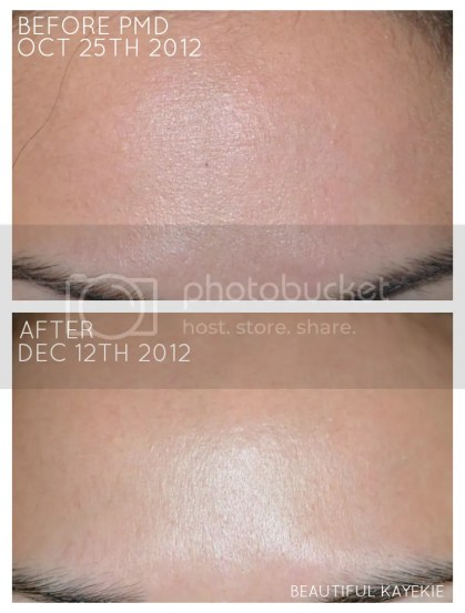 PMD Personal Microderm Before & After