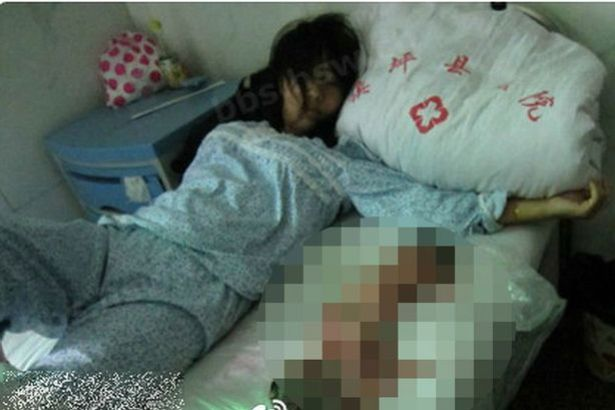 Feng Jianmei in hospital next to the body of her aborted baby 7 month pregnant woman