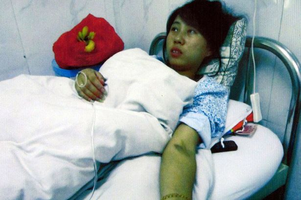 Feng Jianmei in hospital 7 month pregnant woman allegedly forced to have an abortion, China
