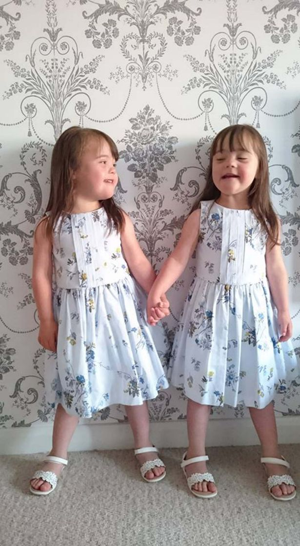Identical twins born with Down's syndrome Abigail and Isobel