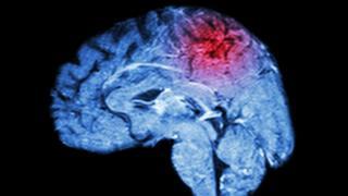 O que são os miniderrames cerebrais – e como eles podem ser um alerta de algo mais grave