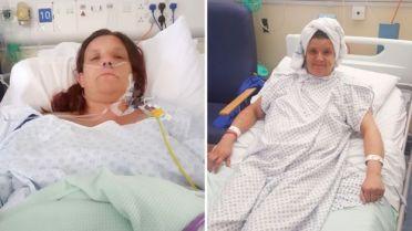 Mandy en el hospital poco después de su cirugía (izq.) y unos días más tarde