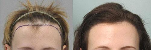 womens-hair-transplant-los-angeles2