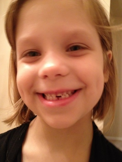 First tooth lost.