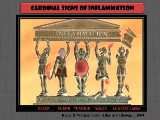 Imagini pentru sign on inflammation