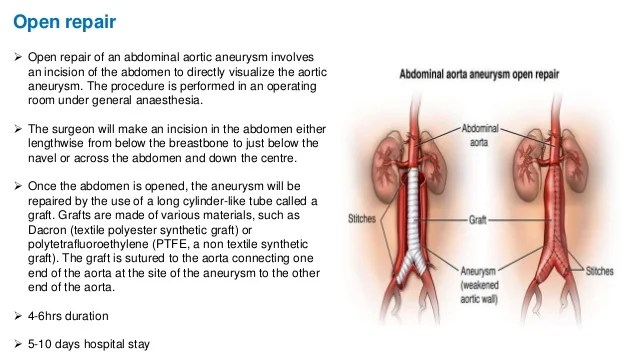 image of Icd 10 Coding Abdominal Aortic Aneurysm Without Rupture 01