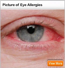 Eye Allergy Symptoms Discharge